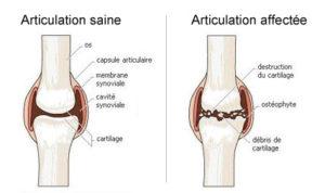 arthrose; sport; lutter contre l'arthrose